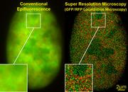 GFP / RFP Dual color localization microscopy SPDMphymod / super resolution microscopy in a nucleus of a bone cancer cell: counting of 70,000 RFP-H2A-histone molecules & 50,000 GPF-Snf2H chromatin remodeling proteins (field of view of 470 µm², optical depth of 600 nm, each 'spot' represents a single molecule, total 120000)