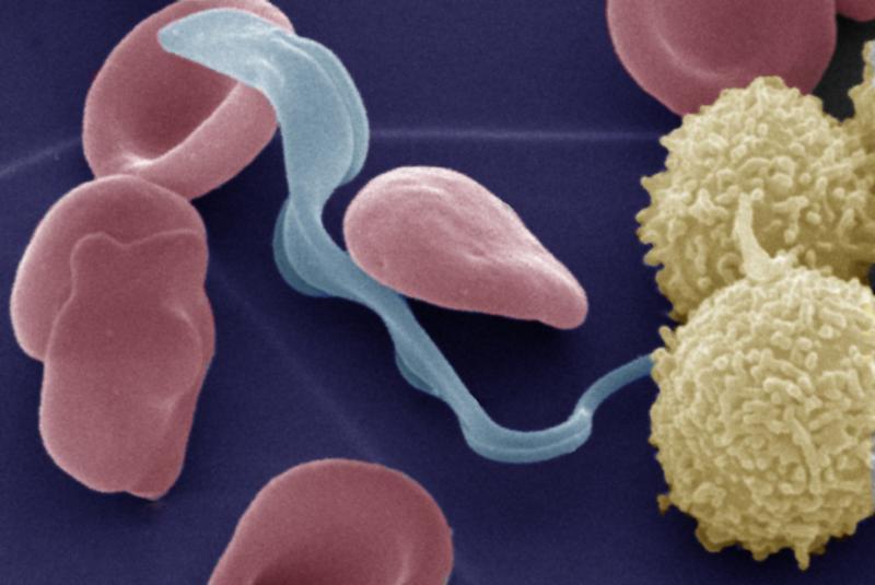Wie den Abstrich auf die Eier der Würmer nehmen