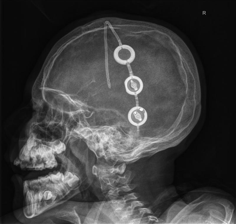 medizin am abend berlin interdisziplinär: 360° top-einladung, Einladung