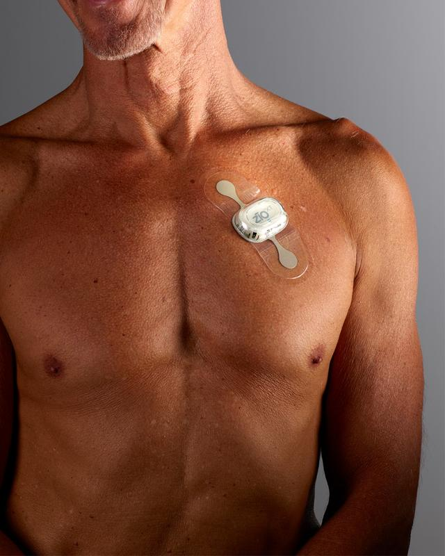 Für die EKG-Aufzeichnung wird ein Pflaster mit integrierter Aufzeichnungseinheit auf die Brust der Patienten geklebt.