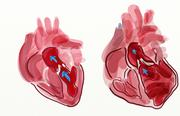 While a normal heart pumps a certain amount of blood (left), the dilated heart has much lower pumping capacity (right)