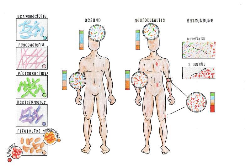 """Im Fall eines Ekzems bei Neurodermitis-Patienten, also einer akuten Entzündung der Haut, sinkt die Vielfältigkeit der Bakterien weiter ab und der Anteil bestimmter """"schlechter Bakterien"""" steigt an."""