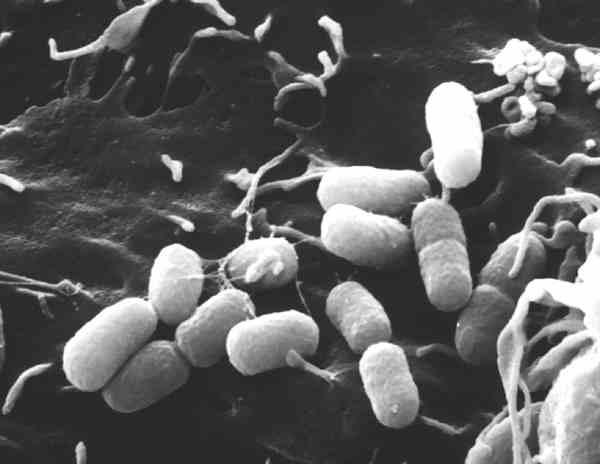 Wie kleine pillen sehen die klebsiella pneumoniae bakterien aus die