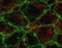 Mikroskopische Aufnahme einer sogenannten Windradstruktur: Eine ENaC positive Stammzelle (rot), umgeben von Ependymzellen.