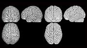 Three brain scans (from the front, side and above) of two different brains (pictured on the left and on the right) belonging to twins. The furrows and ridges are different in each person.