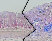 Colonic tissue from lean (left) and overweight (right) mice of the colon cancer study. In the overweight animals, an enhanced tumor growth with increased numbers of immune cells (blue) can be seen.