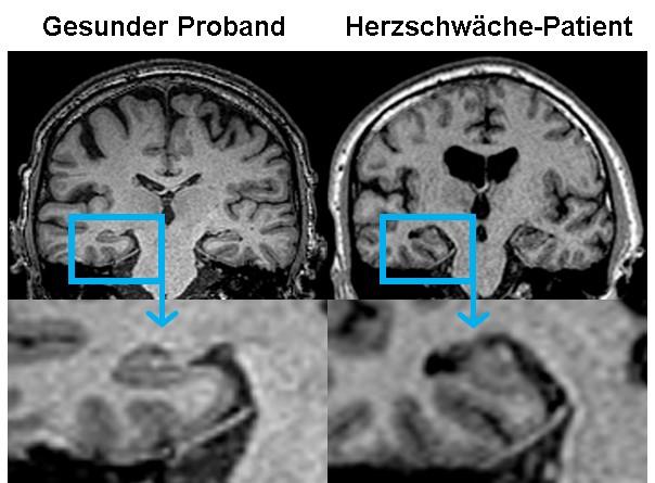 Die Studie Cognition.Matters-HF zeigt: Das schwache Herz beeinflusst die Hirnfunktion; links das MRT-Bild des Hippocampus von gesunden Probanden, rechts die Atrophie bei Herzschwäche-Patienten.