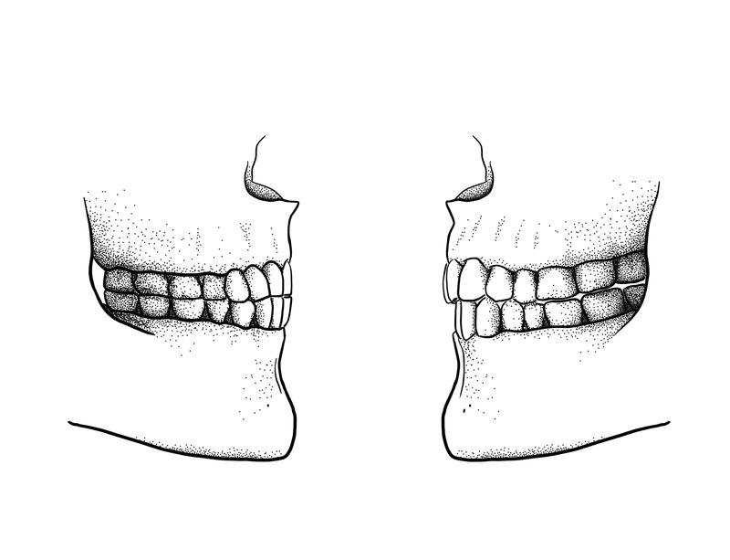 The difference between a Paleolithic edge-to-edge bite (left) and a modern overbite/overjet bite (right). (Image: Tímea Bodogán)