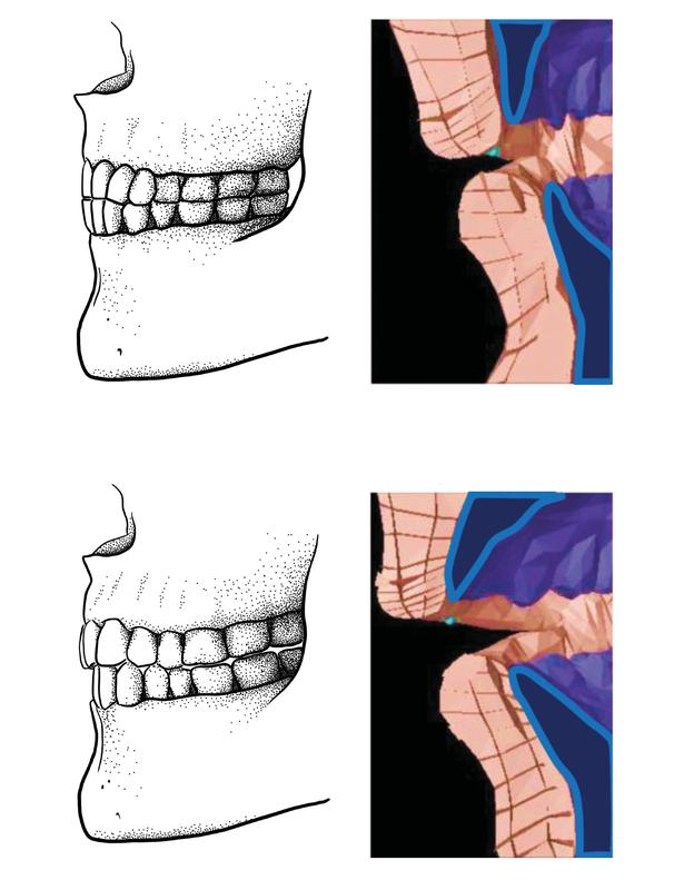 "Paleolithic edge-to-edge bite (top) and a modern overbite/overjet bite (bottom) and how ""f"" sounds are produced in a biomechanical model. (Image: Tímea Bodogán) (Bild: Tímea Bodogán/Scott Moisik)"