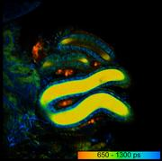 False-colour image of the fluorescence lifetime of the metabolic coenzyme NADH in sperm mass (here in yellow) in a female sperm storage organ in the fruit fly.
