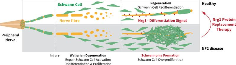 Upon nerve damage, Schwann cells divide to support nerve regeneration. Neuregulin 1 (Nrg1) on (regenerated) nerves stops this cell division. If Nrg1 is missing, cell division continues to form tumors. Treatment with soluble Nrg1 inhibits tumor formation.