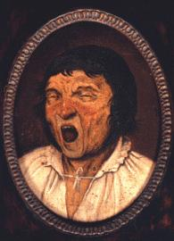 """Ein  Patient mit Blepharospasmus und Krämpfen der Kaumuskulatur (sog. oromandibuläre Dystonie): """"De Gaper"""", verewigt in einem berühmten Bild des niederländischen Malers Pieter Brueghel aus dem 16. Jahrhundert."""
