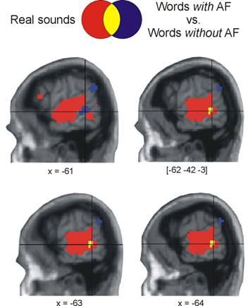 Der Klang der Begriffe im Gehirn: In gelber Farbe ist die Überlappung in der Hirnaktivierung bei der Verarbeitung von geräuschbezogenen Begriffen wie Telefon (blau) und beim Hören realer Geräusche dargestellt (rot).