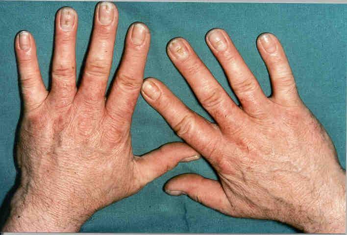 Die Behandlung der Schuppenflechte vom schwarzen Kümmel