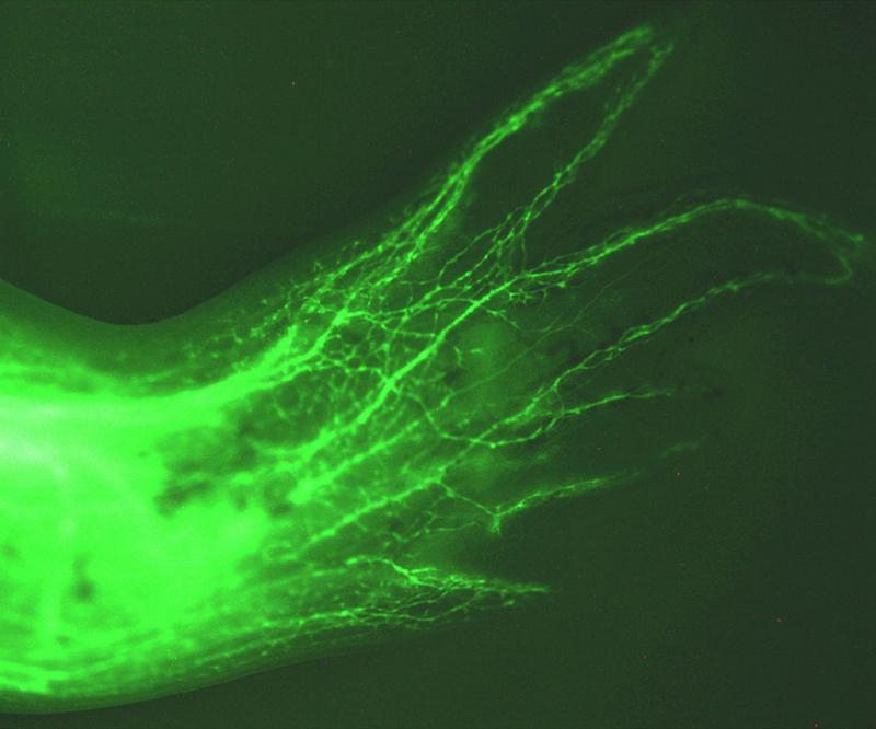 Regeneriertes Glied des Axolotl mit GFP (green fluorescent protein) angefärbten Schwann Zellen, die sich um die Nervenzellen wickeln. Nur Zellen um die Nervenfasern herum sind grün. Dr. Martin Kragl